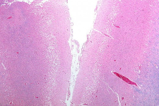 A micrograph showing what is seen many times from a stroke victim: Cordical pseudolaminar necrosis.