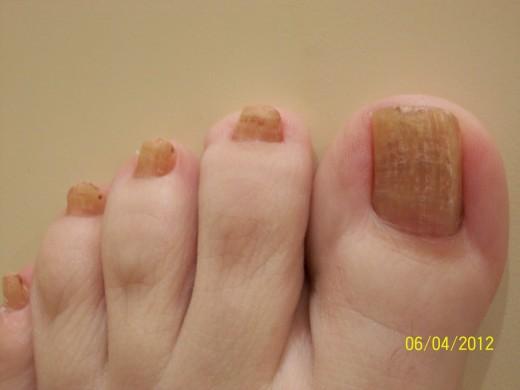 Advanced toenail fungus picture