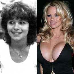 Pamela Anderson is one of the most famous celebrity boob job recipients.