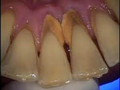 What causes dental plaque?