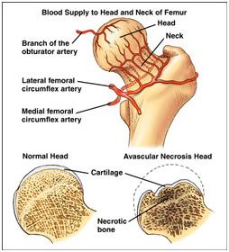 Avascular Necrosis of Hip