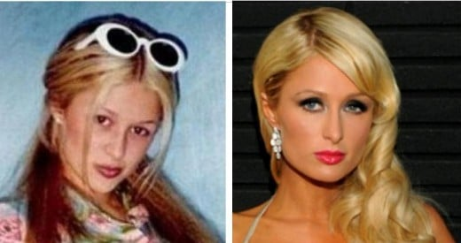Paris Hilton Colored Contacts, Before and After