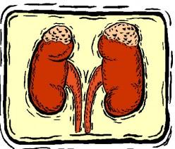 Kidney Stones - My Experience