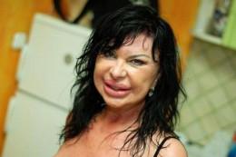 Maria Geronazzo, lip injections.