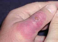 Early Stages Of A Brown Recluse Spider Bite