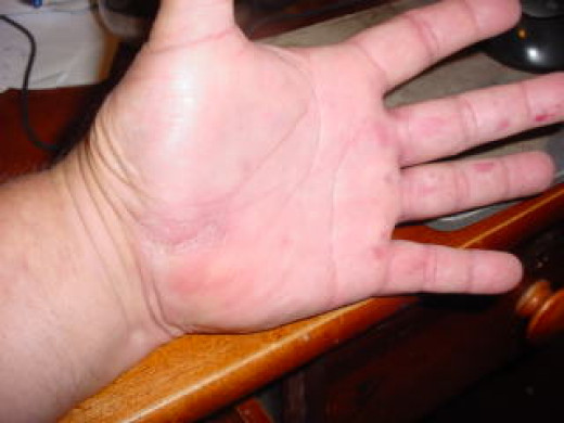 My Hand after 6 Months
