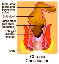 FIG 2  Inflamed Colon