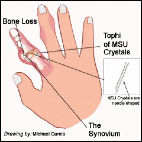 Gout in index finger