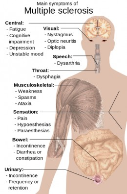 Multiple Sclerosis has many symptoms, sometimes minor and sometimes debilitating.