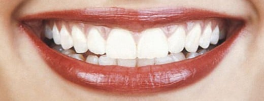 White Teeth beautifies your smile and increase your face value