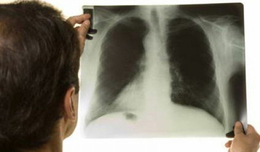 The x-ray shows TB (white area of lung)