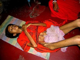 17-year old Roopa is a victim of India's dowry    Read Roopa's Story by rita banerji for details.