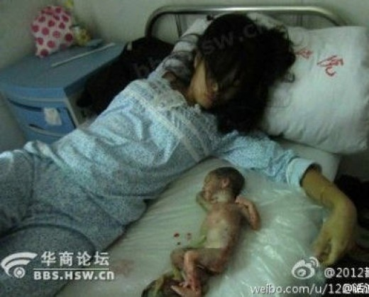 The picture that caused a national protest on abortions. Mother and aborted baby.