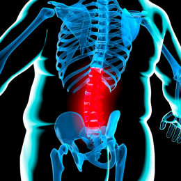 Obesity causing back pain