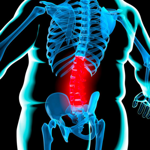 Obesity causing back pain