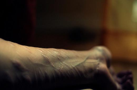 Self harming still happens on psychiatric wards.