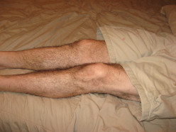 Restless Legs and RLS Treatment