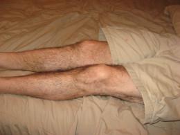 Hubby's restless legs.