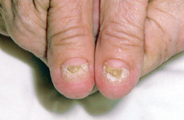 Other associated feature of Gardner syndrome may also include nail atrophy.