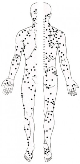 As you can see, the body is full of trigger points. There are several in the area of the glutes that affect low back pain.