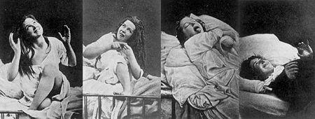Hysterical women under hypnosis