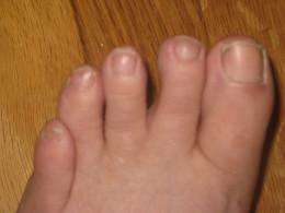 Old Lady Feet