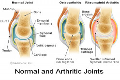 How To Stop Stiff Joints From Arthritis