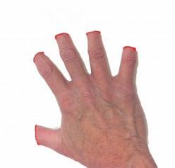 Hand/paw represented as following a de-clawing surgery