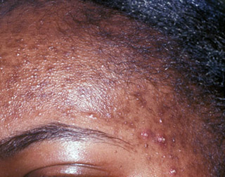 Black skin can suffer from acne just as much as lighter skin and can be just as problematic