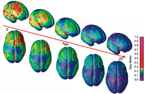 The back to front development of the brain 5-20 years. Thinning out of the grey matter in the pruning stage.