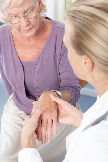 A lady with rheumatoid arthritis