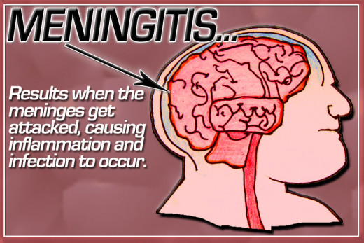 Meningitis Of The Brain
