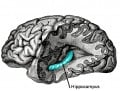 Stress Shrinks Hippocampus of the Brain