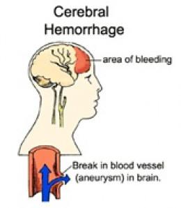 Hemorragic Stroke
