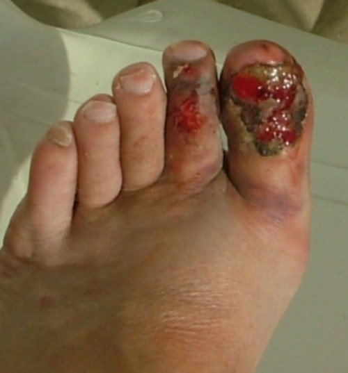 My big toe injury from wearing flip-flops. Photo by Steve Andrews
