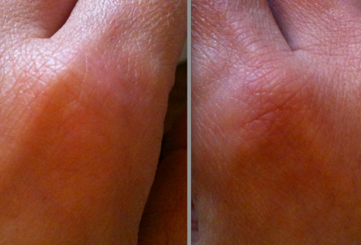 Hand with BB Cream applied (left) and without (right).  Photo© Redberry Sky 2012.