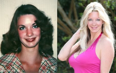 Sarah Burge before and after surgery.