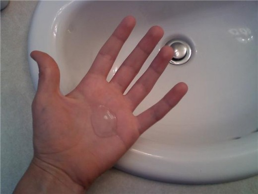 Wound infection prevention is helped by general hand washing and anti-bacterial gel.
