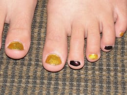 Pedicure done at party for tween girls
