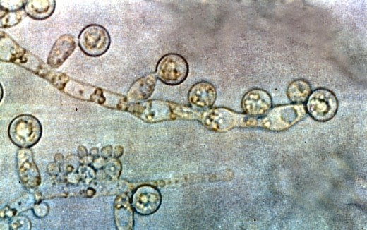 Another view of Candida albicans