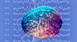 Epilepsy: The Different Kinds of Seizures - from Conscious to Unconscious and In Between