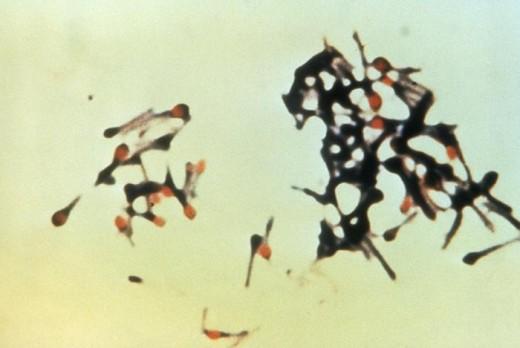 Tetanus - Clostridium Tetani.
