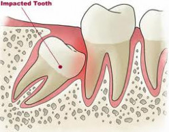 Removing an Impacted Tooth
