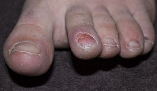 Hikers can get runner's toe if their toes hit the front of the boot while walking.