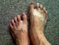 Have you ever ended a relationship because of a pair of ugly feet?