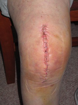 Healing incision after total knee replacement.