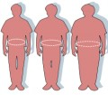 Obesity:It's causes,effects and how to overcome it