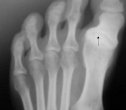 The arrow points to osteoarthritis in the toe joint.