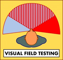Definition of Visual Field Test
