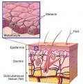 The Vitiligo Treatments